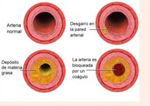 Síntomas de la Hipercolesterolemia