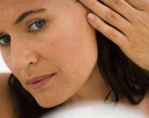 Síntomas de la alteración de la pigmentación de la piel
