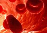 Síntomas de la anemia de Fanconi