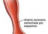 Síntomas de la angina variante