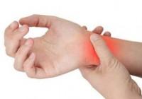 Síntomas de la Artritis