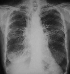 Síntomas de la bronquiectasia