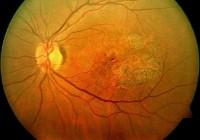 Síntomas de la degeneración macular