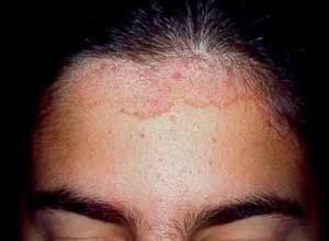 Síntomas de la dermatitis seborreica
