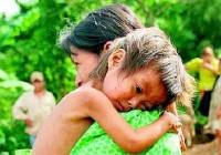 Síntomas de la desnutrición