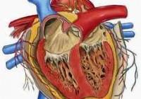Síntomas de la endocarditis
