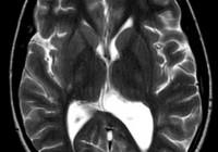 Síntomas de la conmoción cerebral