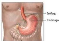 Síntomas de la gastritis