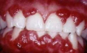 Síntomas de la gingivitis