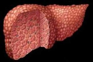 Síntomas de la hepatitis D