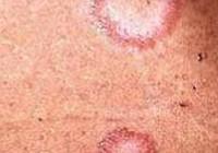 Síntomas de la lepra