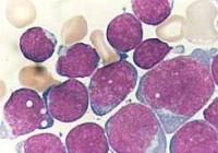Síntomas de la leucemia mielógena aguda