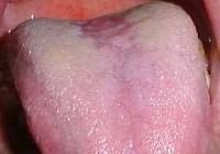 Síntomas de la leucoplasia