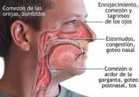 Síntomas de la rinitis