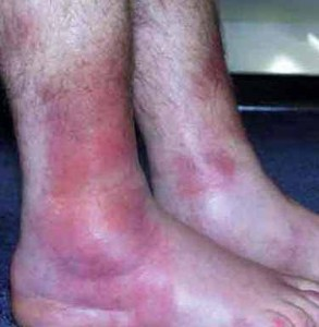 Síntomas de la sarcoidosis