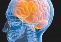 Síntomas de un accidente cerebro vascular