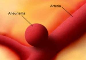 Síntomas de un aneurisma