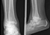 Síntomas de una fractura de tobillo