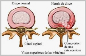 Síntomas de una hernia discal
