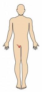 Síntomas de una hernia inguinal