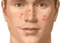 Síntomas del acné