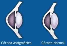 Síntomas del astigmatismo