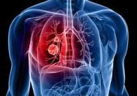 Síntomas del cáncer de pulmón de células no pequeñas