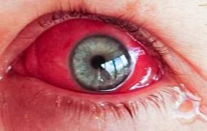 Síntomas del enrojecimiento de ojos